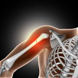 3D medical image showing broken bone in arm. 3D render of a medical image showing broken bone in arm Stock Photography