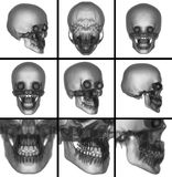 3d render skull on  background Royalty Free Stock Photos