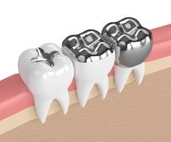 3d render of teeth with different types of dental amalgam fillin Stock Images