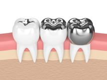 3d render of teeth with different types of dental amalgam fillin Royalty Free Stock Images