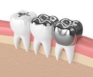 3d render of teeth with different types of dental amalgam fillin Royalty Free Stock Image