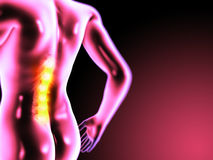 Painful back. 3d rendered anatomy illustration of painful back Stock Images