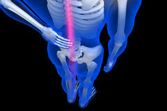 3d rendered illustration - backache. In white color background Royalty Free Stock Image