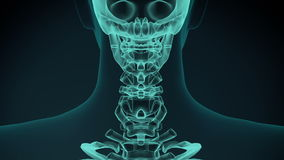 3d rendered illustration of a painful neck. medical concept animation.