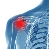 3d rendered illustration of a painful shoulder Royalty Free Stock Image