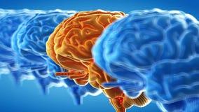 Abstract human brains