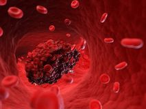 A blood clot. 3d rendered, medically accurate illustration of a blood clot royalty free illustration