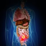 Colon cancer. 3d rendered medically accurate illustration of colon cancer stock illustration
