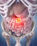 A colon tumor. 3d rendered medically accurate illustration of a colon tumor stock illustration