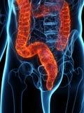 A diseased colon vector illustration