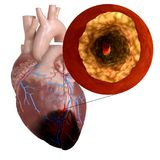 A heart attack. 3d rendered, medically accurate illustration of a heart attack vector illustration
