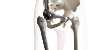 A hip replacement. 3d rendered medically accurate illustration of a hip replacement royalty free illustration