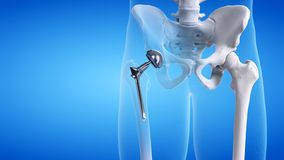 A hip replacement. 3d rendered medically accurate illustration of a hip replacement vector illustration