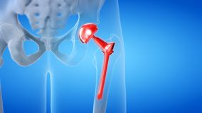 A painful hip replacement. 3d rendered medically accurate illustration of a painful hip replacement stock illustration
