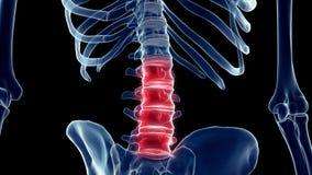 a painful lumbar spine