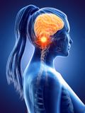 A womans brain cancer royalty free illustration