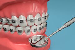 3D rendering from a dental brace check with a stomatoscope Stock Photo