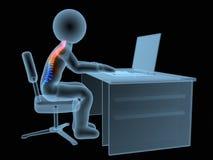 3d rendeu a ilustração médica - postura de assento errada Foto de Stock