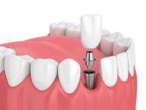 3d rendono della mandibola con i denti e l'impianto dentario dell'incisivo illustrazione di stock