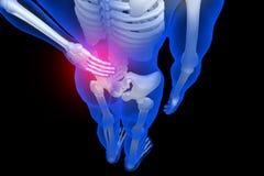 3d rindió el ejemplo - dolor de espalda Fotografía de archivo