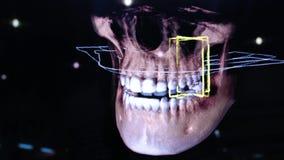 3D tand digitale modelleringsrestauratie 3d model van tanden, afgetaste tanden van de patiënt De arts bestudeert stock footage