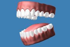 3D tanden sluiten omhoog Stock Foto's