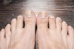 Dłudzy toenails Zdjęcia Royalty Free