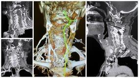 3D verlaten wervel de slagadercollage van de angiotomografie aftasten Stock Afbeelding