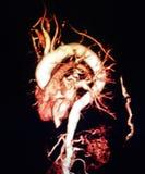 3D vernauwing van de magnetische resonantie nierslagader Royalty-vrije Stock Foto