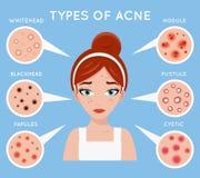 Da menina bonita cosmética da medicina dos cosméticos da beleza do problema da espinha do cuidado da pele das mulheres da acne da ilustração stock