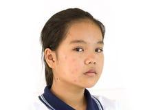Dama nieszczęśliwy z chickenpox na twarzy fotografia stock