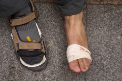 Damage on the foot of a pilgrim in Royalty Free Stock Image