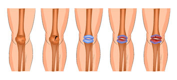Damage to the knee joint Stock Photo