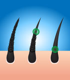Damaged hair turn to healthy hair. On blue background stock illustration