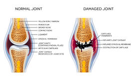 Damaged joint and healthy joint. Detailed anatomy diagram stock illustration
