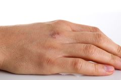 Damaged male arm with corrupted dry skin. Closeup on white background Royalty Free Stock Photo