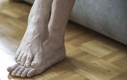 Damaged nails because of fungus and athlete`s foot after chemoth. Closeup of feet with arthritis, damaged nails because of fungus and athlete`s foot after royalty free stock images