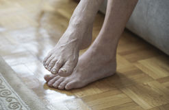 Damaged nails because of fungus and athlete`s foot after chemoth. Closeup of feet with arthritis, damaged nails because of fungus and athlete`s foot after royalty free stock photography