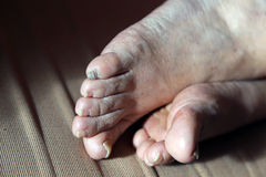 damaged nails of womans feet Royalty Free Stock Image