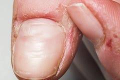 Damaged skin on the finger, burrs, macro royalty free stock photos