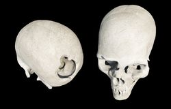Damaged Skull Isolated on Black Stock Photo