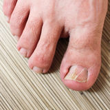 Damaged toenail. Foot closeup. The thumb on the man's leg Royalty Free Stock Images