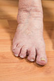 Damaged toes Stock Photo