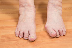 Damaged toes Royalty Free Stock Photo