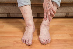 Damaged toes and wrinkled hand Royalty Free Stock Photography