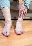 Damaged toes and wrinkled hand Royalty Free Stock Photos