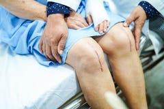 Dame âgée supérieure asiatique de dame patiente lui montrent des cicatrices remplacement total chirurgical d'articulation du geno images stock