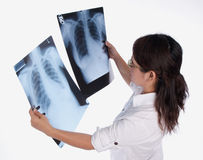 Dame, die Röntgenstrahl betrachtet stockfotos