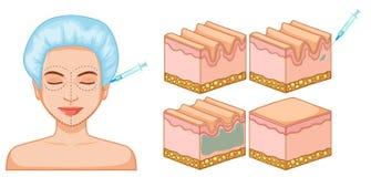 Damengesichtsbehandlung und Haut botox stock abbildung