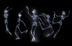 Dancing Skeletons X ray Stock Images